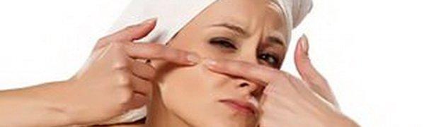 Acne vulgaris (вульгарные угри)
